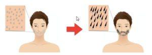 青髭対策(髭を伸ばす)